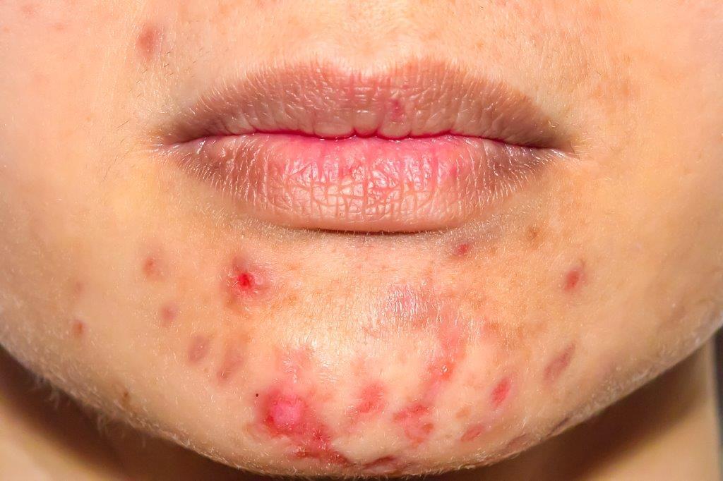 Actieve acne behandelen met lasertherapie bij het Laserkabinet in Herentals