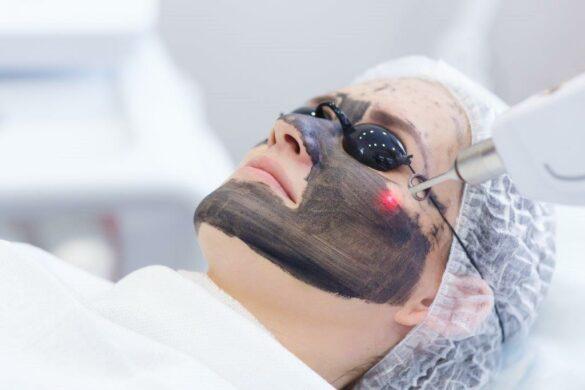 Carbon/Hollywood peel voor een mooie gave huid bij het Laserkabinet in Herentals