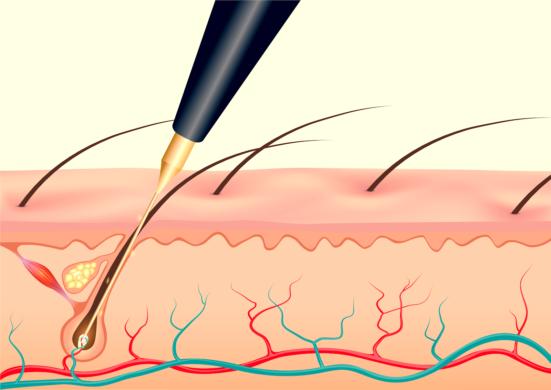 Elektrolyse, definitieve ontharing van witte, rode en pigmentloze haren