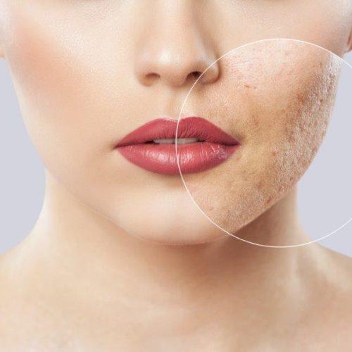 Acne littekens behandelen met lasertherapie bij het Laserkabinet in Herentals