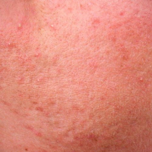 Het Laserkabinet: Rosacea behandelen met lasertherapie en medisch product advies.