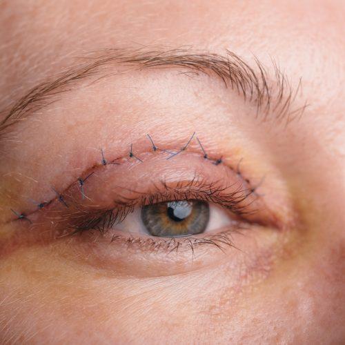 Bovenste ooglidcorrecties bij het Laserkabinet in Herentals