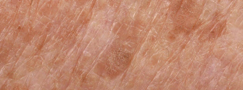 Hyperpigmentatie behandelen bij het Laserkabinet in Herentals